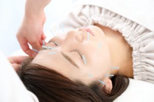 美容鍼の施術風景