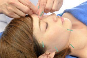 美容鍼の施術を受ける女性