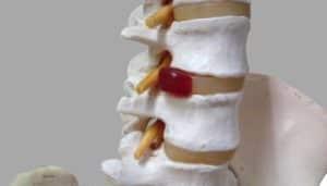 腰椎ヘルニアの骨格模型